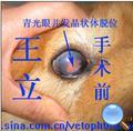人工义眼植入术